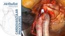 Ascending Aorta to Bilateral Axillary Artery Bypass Lumsden MacGillivray Auyang Chinnadurai