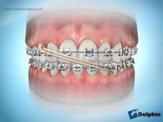 Elastics Midline Correction Class 1 Orthodontics