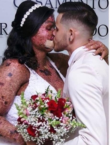 Девушка приобрела жуткое заболеваете кожи, которое оставило необратимые последствия на ее теле Несмотря на это она нашла себе красивого мужчину, который полюбил ее не за внешность, а за