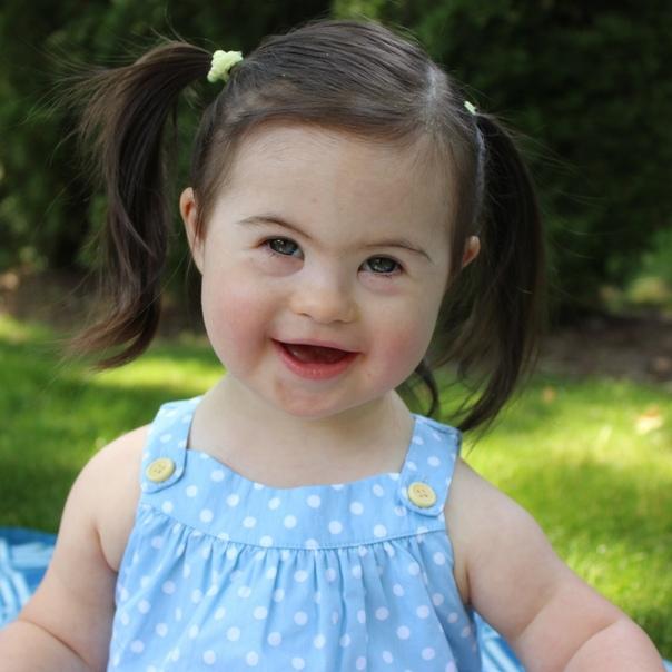 Можно ли избежать рождения ребенка с синдромом дауна, изображение №2