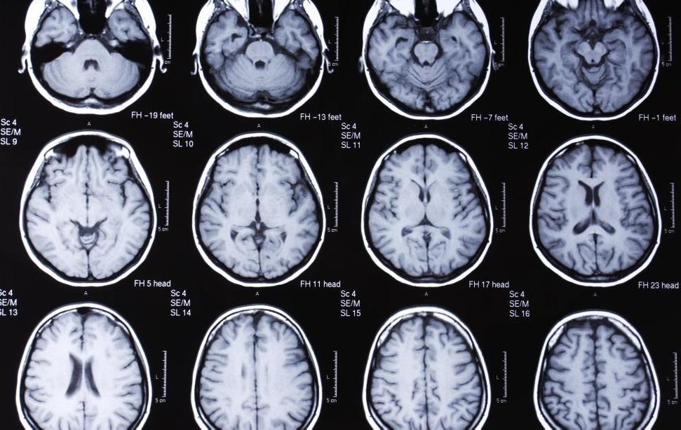 МРТ головного мозга.