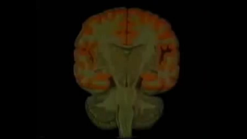 Анатомия человека Кора больших полушарий