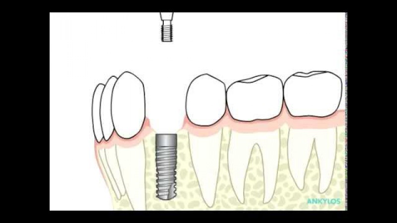 ANKYLOS® Surgical and Prosthetic procedure