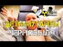 Дети мутанты Чернобыля шокирующее наследие Чернобыльской катастрофы