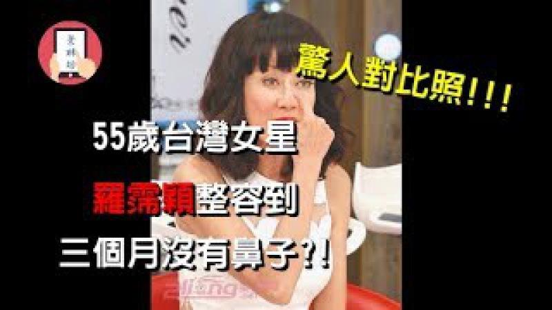 05 3 影視八卦娛樂新聞~ 55歲台灣女星 羅霈穎整容到三個月沒有鼻子 內有驚 20154