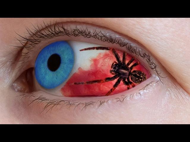 10 ужасающих вещей найденных внутри человеческого тела