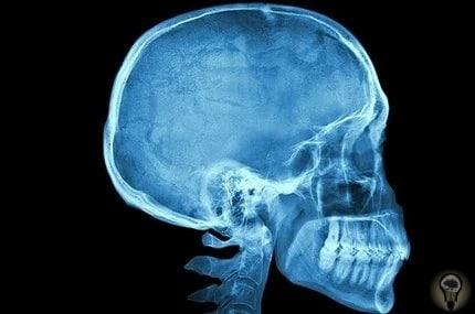 В черепе человека нашли золотое сечение: тайны мозга В новои исследовании ученые сравнили черепа разных существ и пришли к выводу, что размер и форма черепа человека - это результат золотого