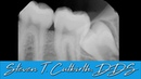 Extracting Impacted Wisdom Teeth Dental Minute with Steven T Cutbirth DDS