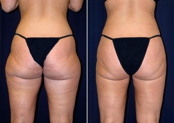 Не Хирургические Способы Похудения.