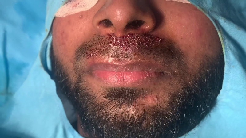 Thick Dense Beard and Moustache by hair transplantation Hide facial Scars