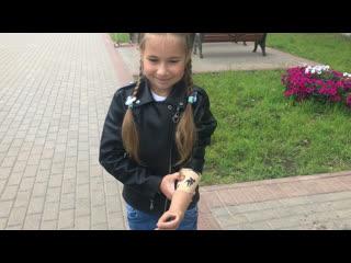 7-ми летней девочке из Вышнего Волочка сделали бионическую руку